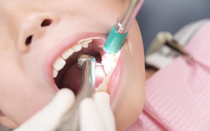 歯の治療は削らない方が良い? 削った方が良い場合や削らない治療内容とは